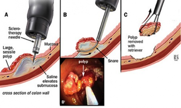 Hình ảnh nội soi cắt polyp đại trực tràng