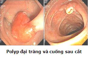 Polyp đại trực tràng và cuống sau cắt hiệu quả