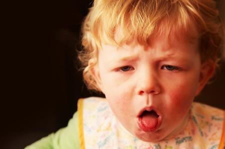 Triệu chứng ho gà ở trẻ