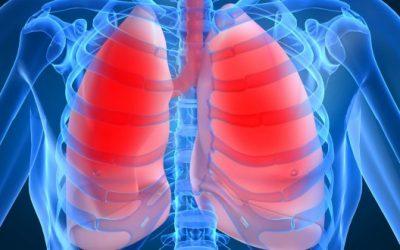 Những biến chứng nguy hiểm của bệnh viêm phổi