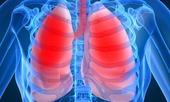 Viêm phổi nếu không được phát hiện và điều trị có thể dẫn đến phù phổi cấp.