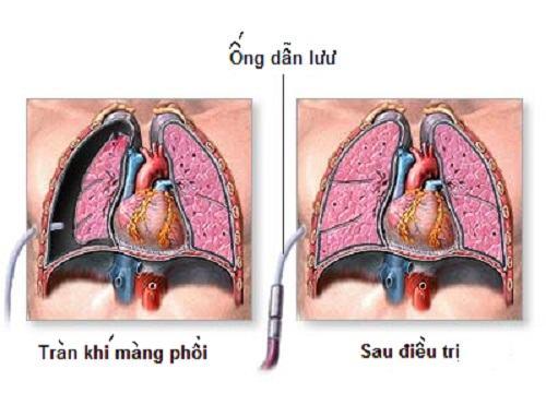 Tràn khí màng phổi là một biến chứng nghiêm trọng của bệnh viêm phổi
