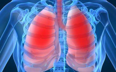 Những lưu ý trong điều trị viêm phổi