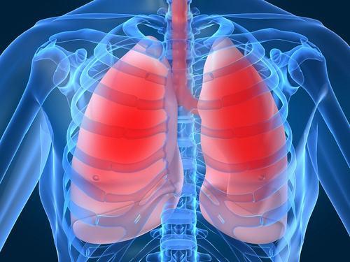 Viêm phổi thường do virus, vi khuẩn hoặc các sinh vật khác gây ra