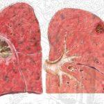 Phương pháp điều trị áp xe phổi