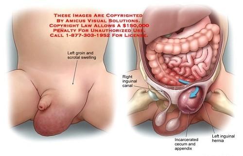Thoát vị bẹn nếu không được điều trị đúng cách có thể gây nên biến chứng nguy hiểm