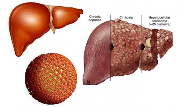 Viêm gan B nếu không phòng ngừa có thể tiến triển nguy hiểm ảnh hưởng đến sức khỏe