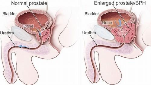 U xơ tuyến tiền liệt thường gặp ở nam giới