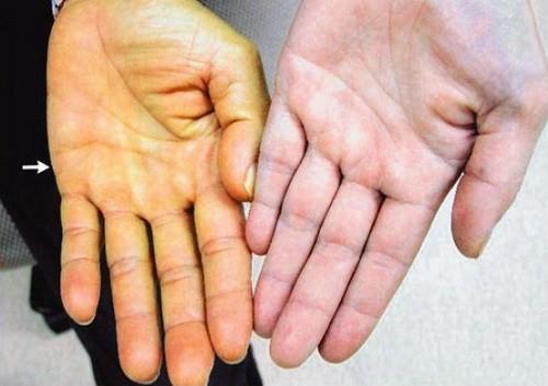 Vàng da triệu chứng báo hiệu viêm gan B giai đoạn nặng