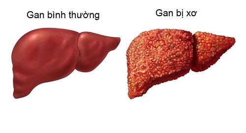 Viêm gan B nếu không được điều trị kịp thời có thể dẫn đến xơ gan
