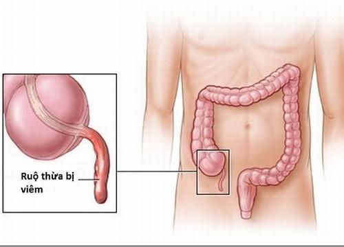 Viêm ruột thừa cần được phát hiện sớm và điều trị đúng cách