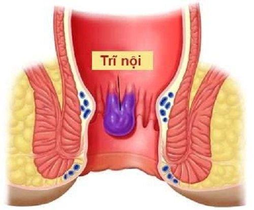 Bệnh trĩ là bệnh được tạo thành do dãn quá mức các đám rối tĩnh mạch trĩ (hay sự phình tĩnh mạch) ở mô xung quanh hậu môn.