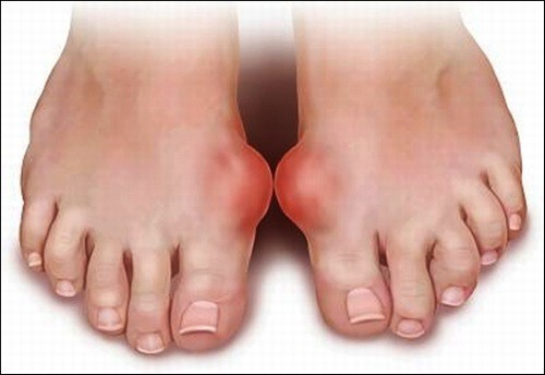 Bệnh gout  cần được phát hiện sớm và điều trị hiệu quả