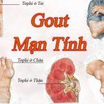 Đau nhức xương khớp bệnh gì?