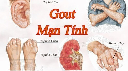 Đau xương khớp là triệu chứng cảnh báo bệnh gout