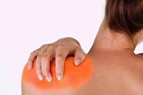Viêm co rút bao khớp vai cũng gây đau vai gáy