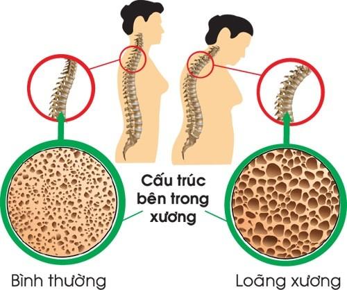 Loãng xương thường xảy ra ở phụ nữ tuổi mãn kinh