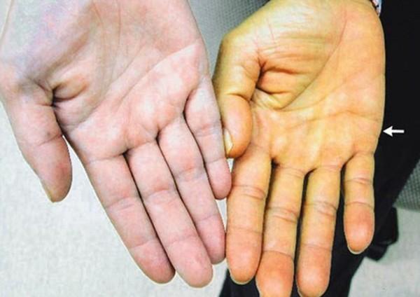 Người mắc bệnh gan thường có da vàng hơn bình thường