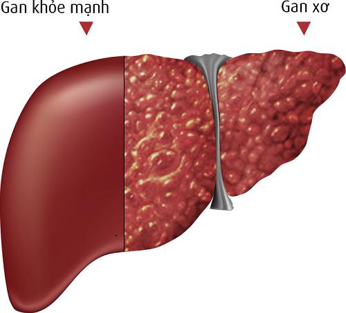 Viêm gan, xơ gan là bệnh lý về gan thường gặp
