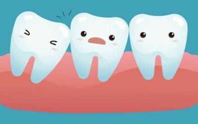 Những điều cần biết về răng khôn