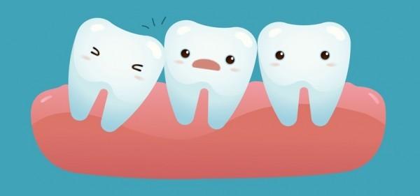 Răng khôn mọc lệch có thể gây tổn thương cho các răng bên cạnh