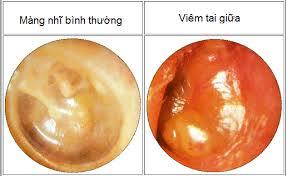 Viêm tai giữa là căn bệnh thường gặp ở trẻ, nguyên nhân chủ yếu là do viêm ở đường mũi họng gây ra