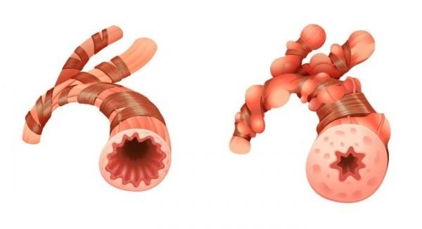 Viêm phế quản co thắt là hiện tượng toàn bộ đường dẫn khí vào phổi bị viêm nhiễm và chít hẹp do phù nề, co thắt.
