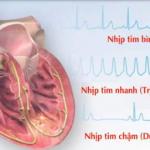 Rối loạn nhịp tim: các yếu tố nguy cơ