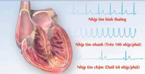 Rối loạn nhịp tim có thể do nhiều nguyên nhân gây nên cần được phát hiện sớm và điều trị hiệu quả