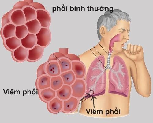 Viêm phổi do nhiều nguyên nhân gây ra cần được phát hiện sớm và điều trị đúng cách