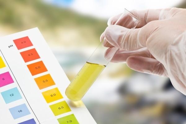 Image result for xét nghiệm bilirubin trong nước tiểu