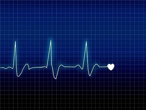 Nhịp tim là thông số hàng đầu cần quan tâm về sức khỏe tim mạch.