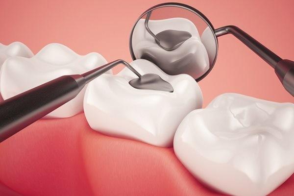 Bạn cũng nên trám răng để bảo vệ răng