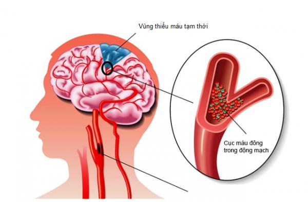 Mảng xơ vữa là nguyên nhân gây thiếu máu lên não