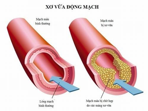 Xơ vữa động mạch là nguyên nhân gây bệnh đột quỵ