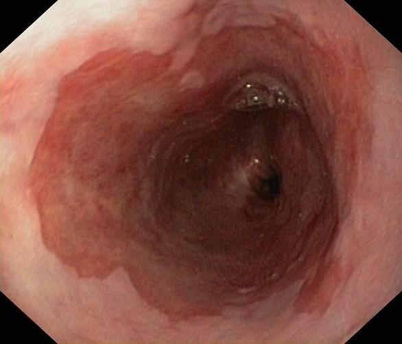 Thực quản bị viêm loét lâu ngày khiến niêm mạc thực quản bị biến đổi giống như niêm mạc ruột, hay còn gọi là barrett thực quản. Sự biến đổi của tế bào trong barrett thực quản là một dấu hiệu cảnh báo nguy cơ ung thư thực quản.