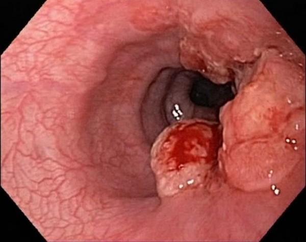 Ung thư thực quản là biến chứng nguy hiểm nhất của bệnh trào ngược dạ dày thực quản. Khi bệnh trào ngược dạ dày thực quản dẫn đến barrett thực quản sau đó có thể chuyển thành ung thư thực quản. Các triệu chứng của ung thư thực quản như: khó nuốt, nuốt đau, khàn tiếng, gầy sút cân... Vì thế khi bệnh đã chuyển thành barrett thực quản cần phải nội soi định kì để theo dõi tình trạng bệnh và có phương pháp điều trị kịp thời.