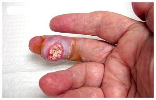 Biến chứng viêm khớp do bệnh gout