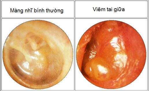 là bệnh thường gặp nhất trong các bệnh về tai, bệnh có thể gặp ở nhiều lứa tuổi nhưng chủ yếu ở trẻ từ 6 – 18 tháng tuổi.