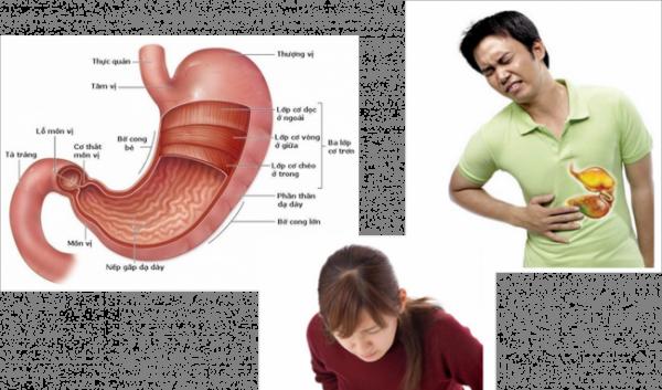 Đau vùng thượng vị có thể là dấu hiệu cảnh báo bệnh dạ dày