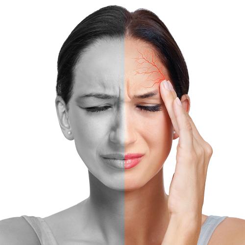 Đau nửa đầu hay còn gọi thiên đầu thống, là cơn đau ở một bên đầu thường đến bất ngờ, cảm giác da đầu căng, đi kèm ù tai, mờ mắt, nhìn ánh đèn chói lại càng đau