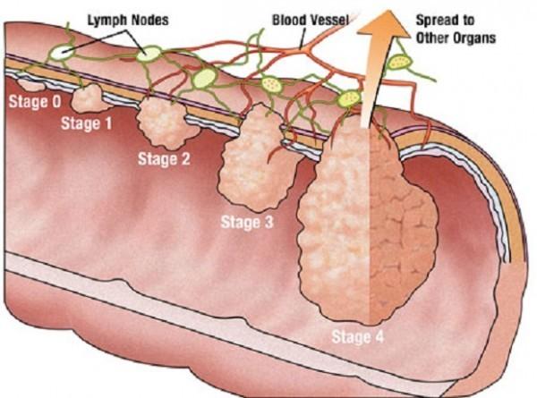 Polyp trực tràng có thể gây nên biến chứng nguy hiểm cần được phát hiện sớm và