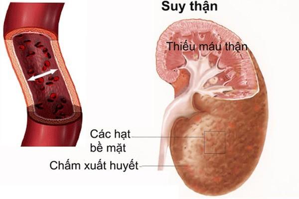 Theo thống kê Việt Nam có 16.000 bệnh nhân suy thận mạn tính.
