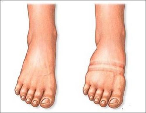Thận bị hỏng không loại bỏ được chất lỏng dư thừa, vì thế chất lỏng tích tụ trong cơ thể khiến bạn bị phù