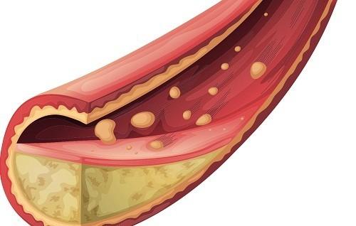 Cholesterol dư thừa  có thể xâm nhập vào màng của thành mạch máu, góp phần làm xơ cứng động mạch (xơ vữa động mạch) và bệnh tim.