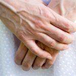 Suy giãn tĩnh mạch tay là gì?