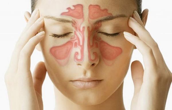 Viêm đa xoang mạn tính là quá trình viêm mạn tính của niêm mạc lót trong lòng các xoang