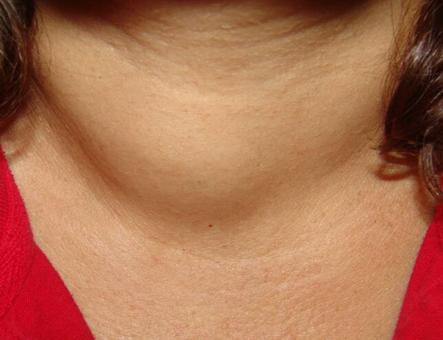 Người có vấn đề về tuyến giáp cổ thường bị sưng lên, cảm giác khó chịu