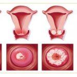 Viêm lộ tuyến cổ tử cung độ 2 và cách xử trí