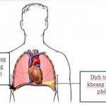 4 nhóm nguyên nhân tràn dịch màng phổi đe dọa tính mạng